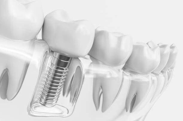 Implanty zębów – kiedy warto je wybrać? Wskazania, zabieg, cena